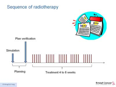 Summary of Radiotherapy processes